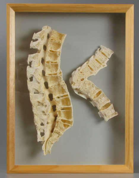 menschliche knochen osteoporose bauer handels gmbh. Black Bedroom Furniture Sets. Home Design Ideas